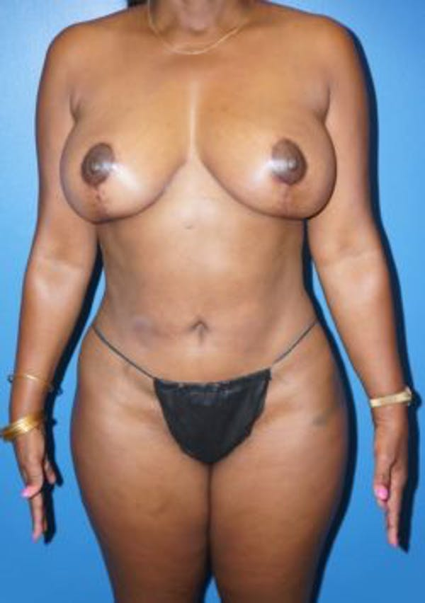 Breast Reduction Gallery - Patient 5226481 - Image 1