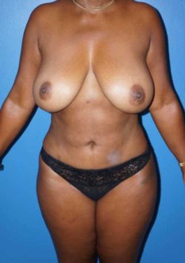 Breast Reduction Gallery - Patient 5226481 - Image 2
