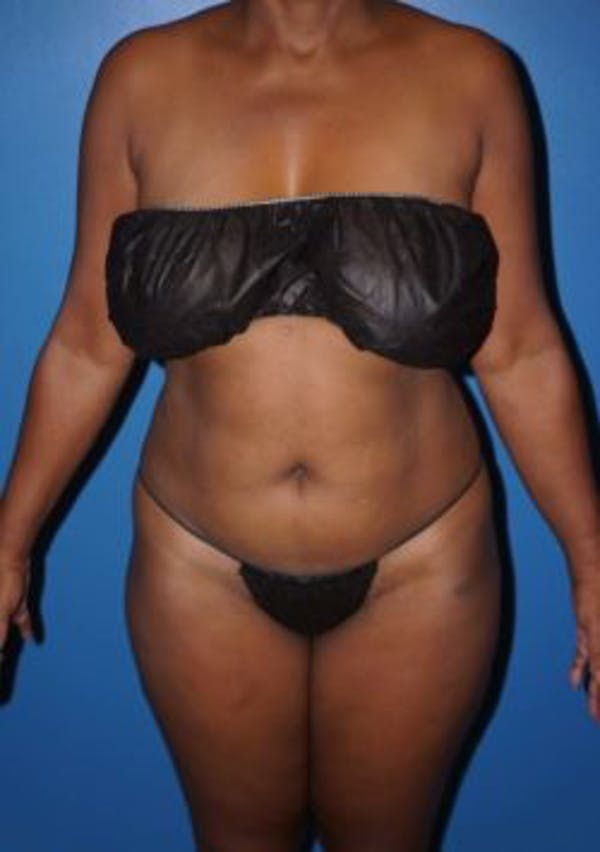 Breast Reduction Gallery - Patient 5226481 - Image 3