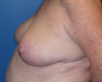 Breast Reduction Gallery - Patient 5226487 - Image 1