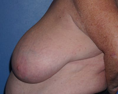Breast Reduction Gallery - Patient 5226487 - Image 2