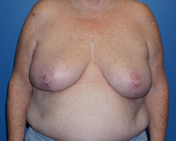 Breast Reduction Gallery - Patient 5226487 - Image 3