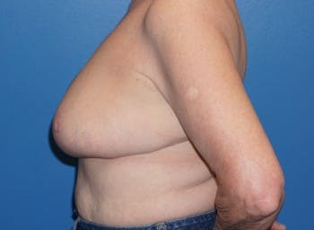 Breast Reduction Gallery - Patient 5226488 - Image 1