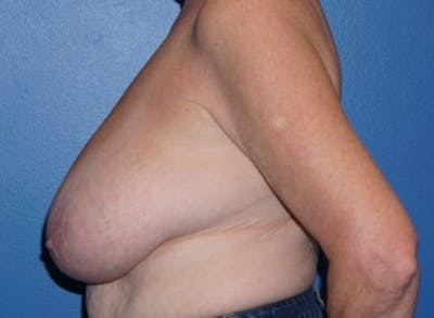Breast Reduction Gallery - Patient 5226488 - Image 2