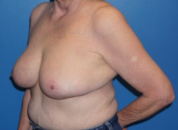 Breast Reduction Gallery - Patient 5226488 - Image 3