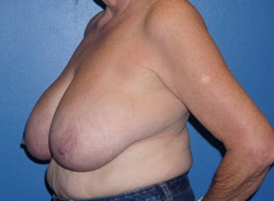 Breast Reduction Gallery - Patient 5226488 - Image 4