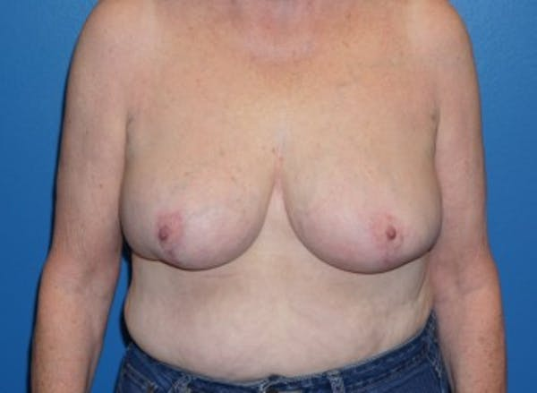 Breast Reduction Gallery - Patient 5226488 - Image 5