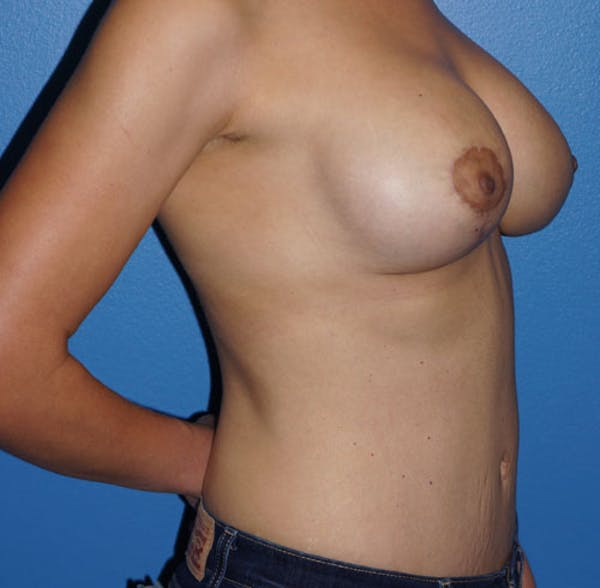 Breast Augmentation with Mastopexy Gallery - Patient 5226489 - Image 2