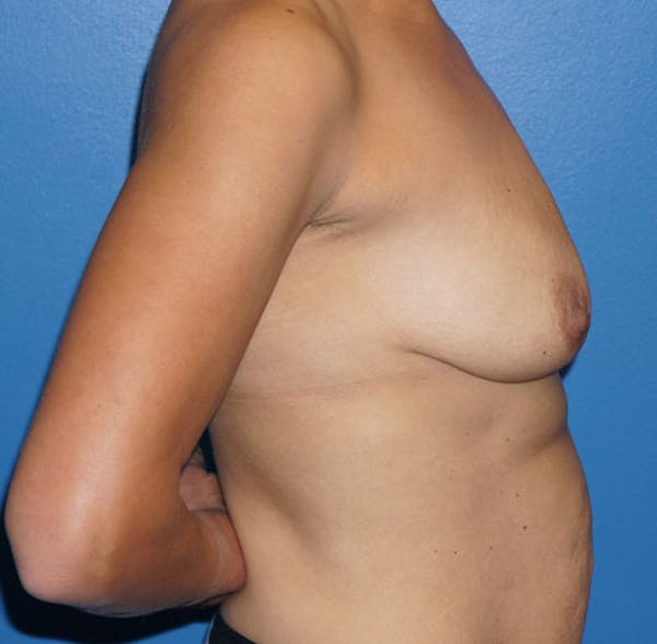 Breast Augmentation with Mastopexy Gallery - Patient 5226489 - Image 3