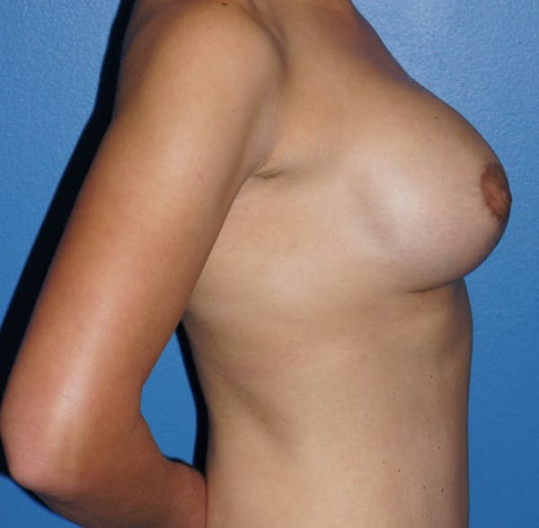 Breast Augmentation with Mastopexy Gallery - Patient 5226489 - Image 4