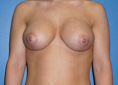 Breast Augmentation with Mastopexy Gallery - Patient 5226499 - Image 2