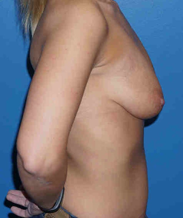 Breast Augmentation with Mastopexy Gallery - Patient 5226499 - Image 5