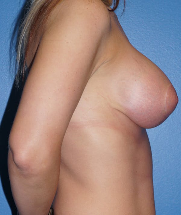 Breast Augmentation with Mastopexy Gallery - Patient 5226499 - Image 6