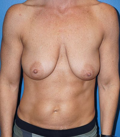 Breast Augmentation with Mastopexy Gallery - Patient 5226502 - Image 1