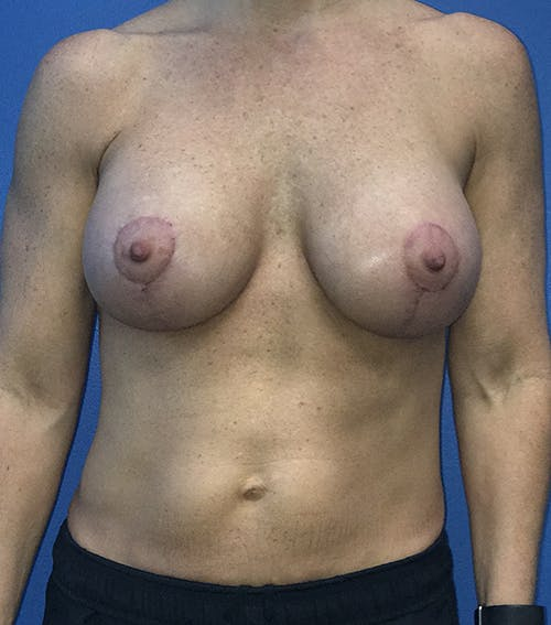 Breast Augmentation with Mastopexy Gallery - Patient 5226502 - Image 2