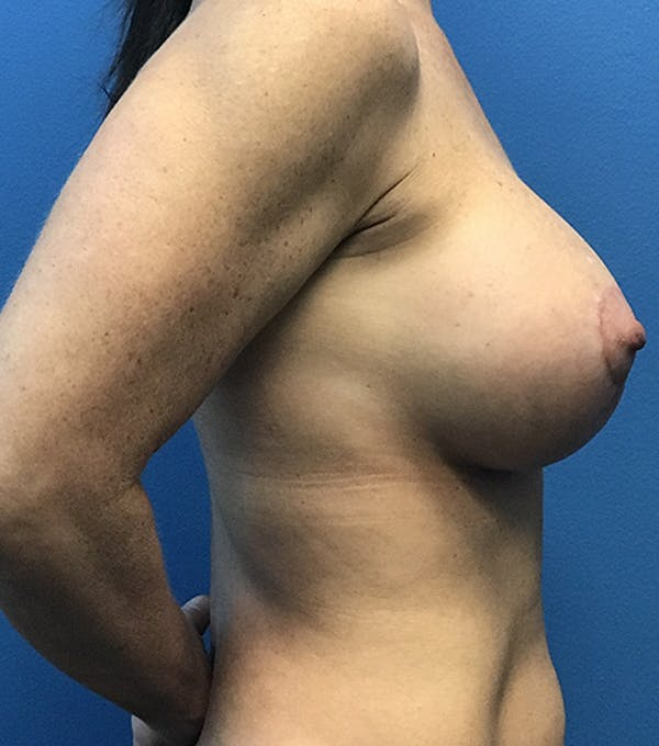 Breast Augmentation with Mastopexy Gallery - Patient 5226502 - Image 4