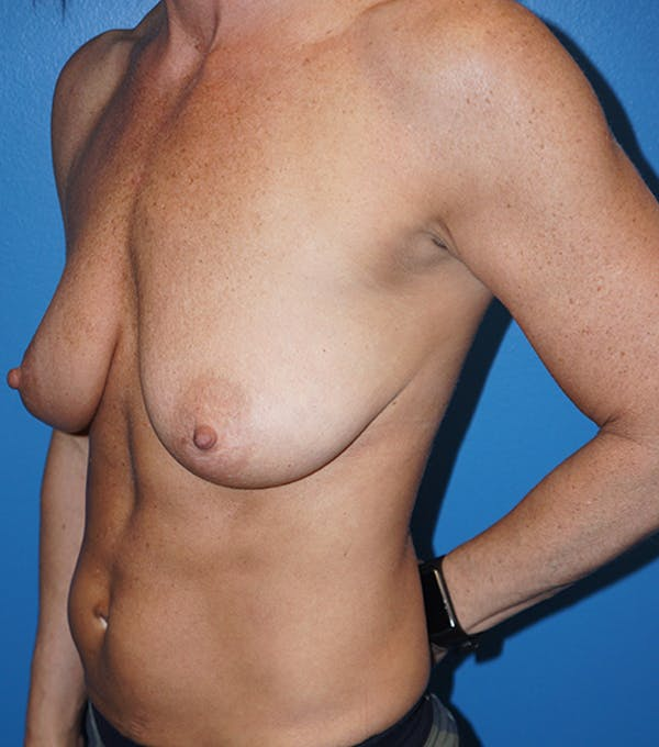Breast Augmentation with Mastopexy Gallery - Patient 5226502 - Image 5