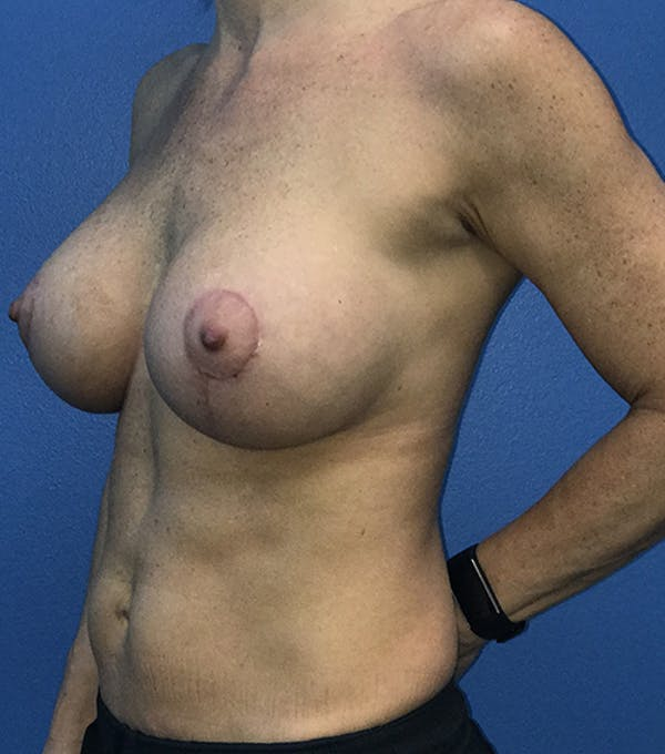 Breast Augmentation with Mastopexy Gallery - Patient 5226502 - Image 6