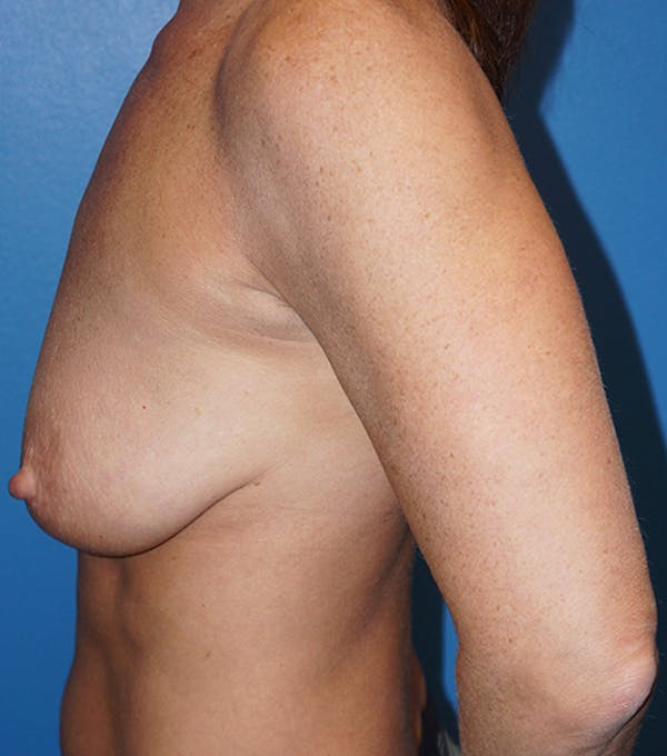 Breast Augmentation with Mastopexy Gallery - Patient 5226502 - Image 7