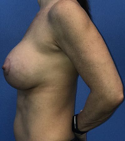 Breast Augmentation with Mastopexy Gallery - Patient 5226502 - Image 8