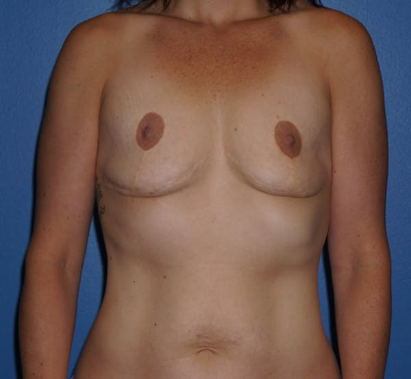 Breast Revision Results in Houston with Dr. Lind