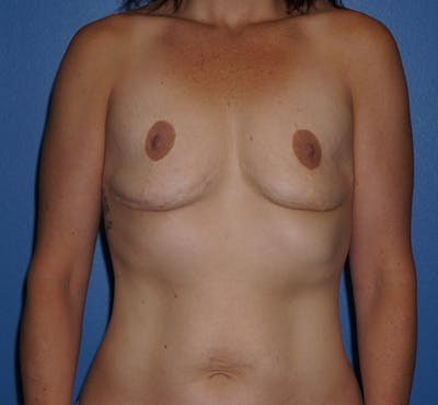 Breast Revision Surgery Gallery - Patient 5226506 - Image 1