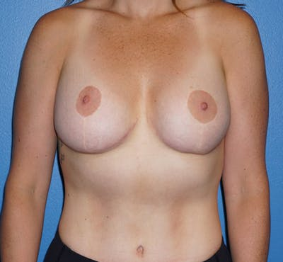 Breast Revision Surgery Gallery - Patient 5226506 - Image 2