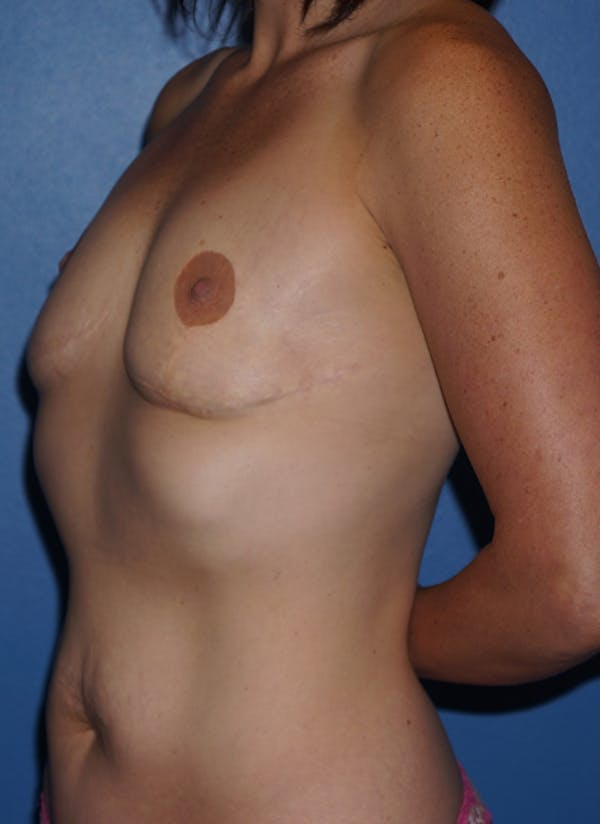 Breast Revision Surgery Gallery - Patient 5226506 - Image 3