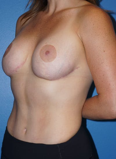 Breast Revision Surgery Gallery - Patient 5226506 - Image 4