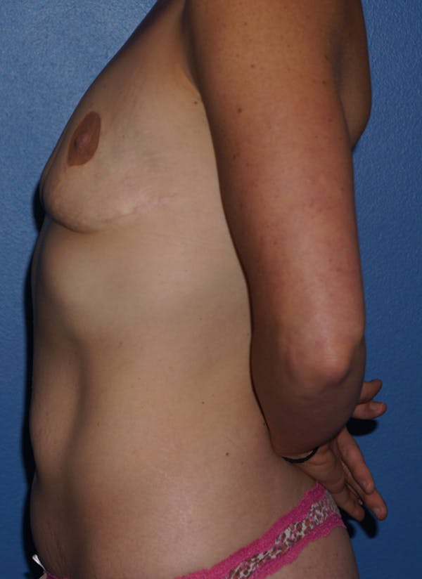 Breast Revision Surgery Gallery - Patient 5226506 - Image 5