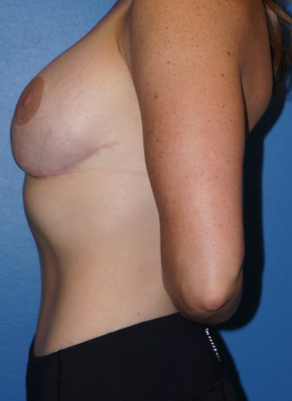 Breast Revision Surgery Gallery - Patient 5226506 - Image 6