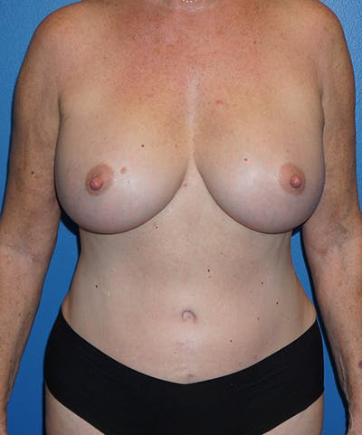 Breast Augmentation Gallery - Patient 5226524 - Image 2