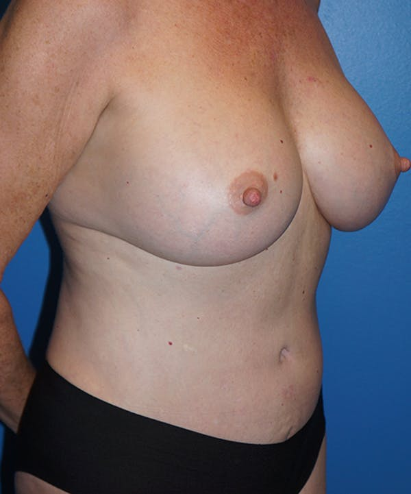 Breast Augmentation Gallery - Patient 5226524 - Image 4