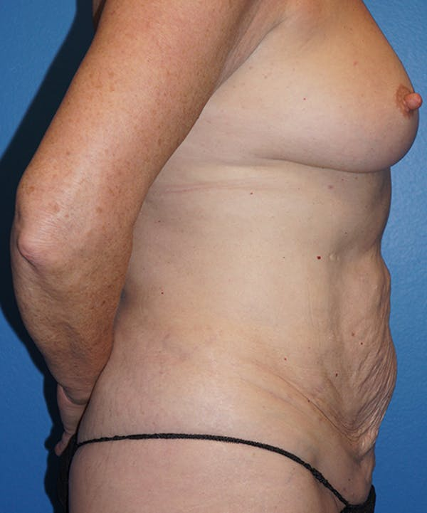 Breast Augmentation Gallery - Patient 5226524 - Image 5