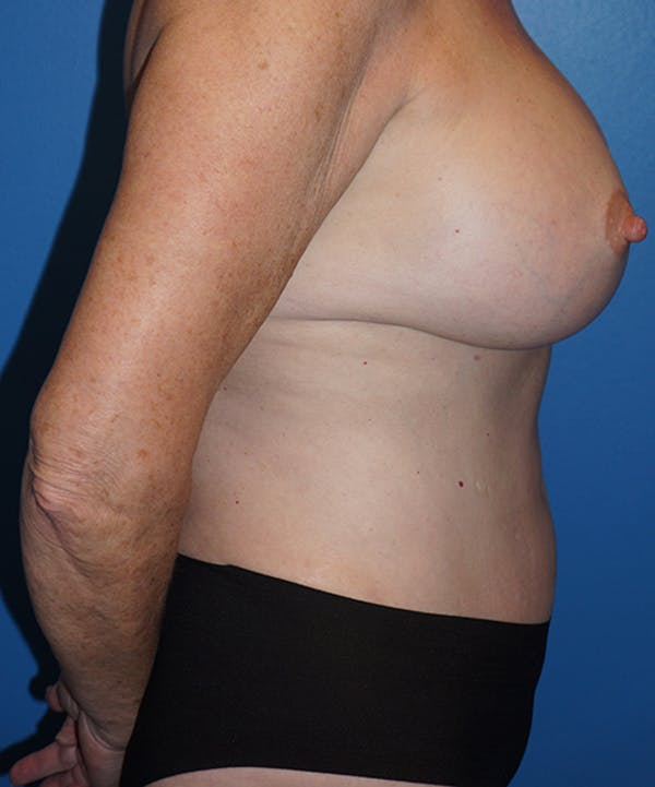 Breast Augmentation Gallery - Patient 5226524 - Image 6