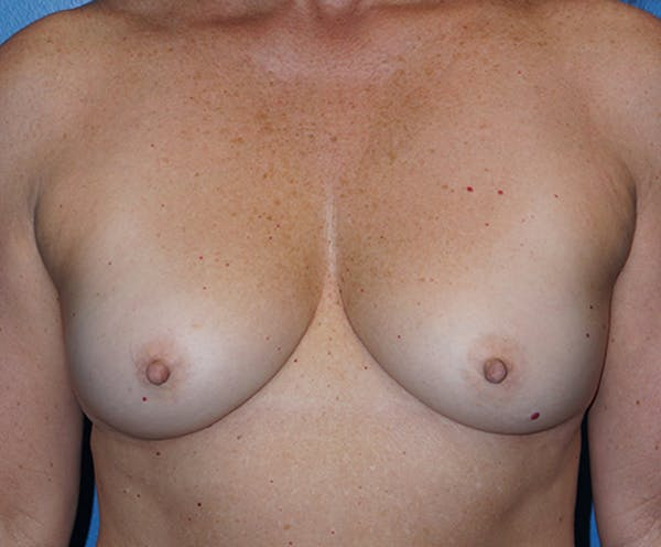 Breast Augmentation Gallery - Patient 5226530 - Image 1