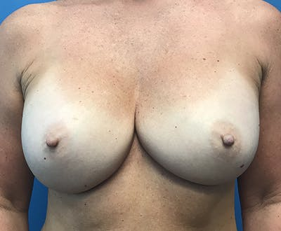 Breast Augmentation Gallery - Patient 5226530 - Image 2