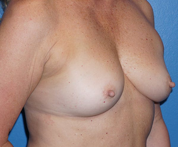 Breast Augmentation Gallery - Patient 5226530 - Image 3