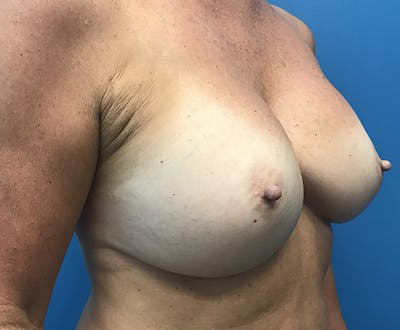 Breast Augmentation Gallery - Patient 5226530 - Image 4