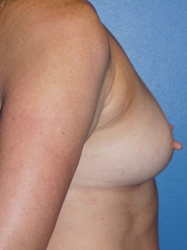 Breast Augmentation Gallery - Patient 5226530 - Image 5