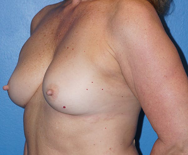 Breast Augmentation Gallery - Patient 5226530 - Image 7