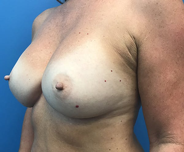Breast Augmentation Gallery - Patient 5226530 - Image 8