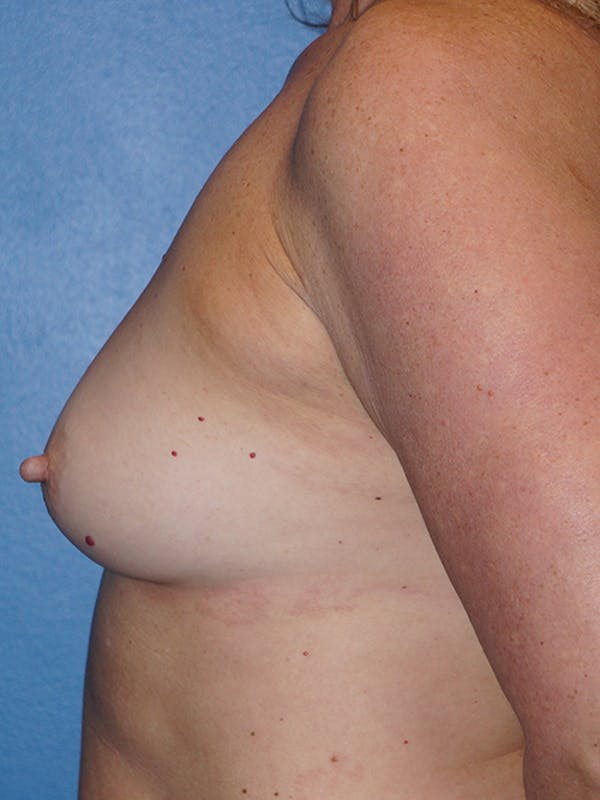 Breast Augmentation Gallery - Patient 5226530 - Image 9