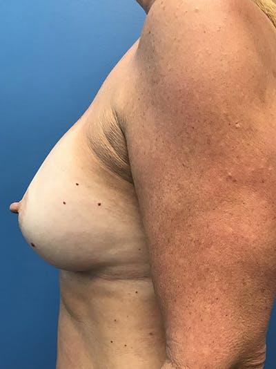 Breast Augmentation Gallery - Patient 5226530 - Image 10