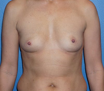 Breast Augmentation Gallery - Patient 5226536 - Image 1