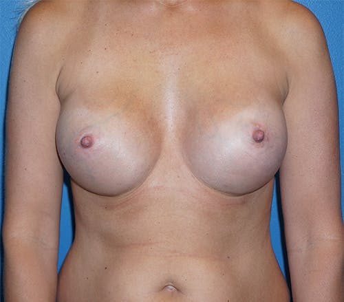 Breast Augmentation Gallery - Patient 5226536 - Image 2