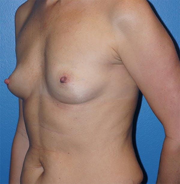 Breast Augmentation Gallery - Patient 5226536 - Image 3