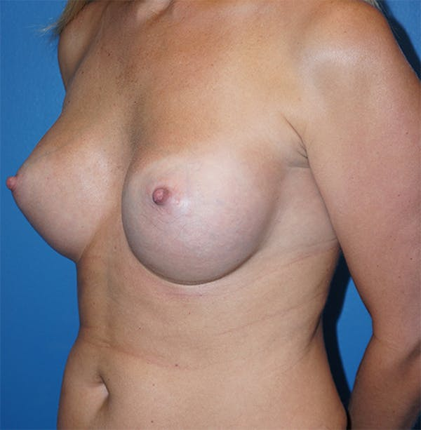 Breast Augmentation Gallery - Patient 5226536 - Image 4