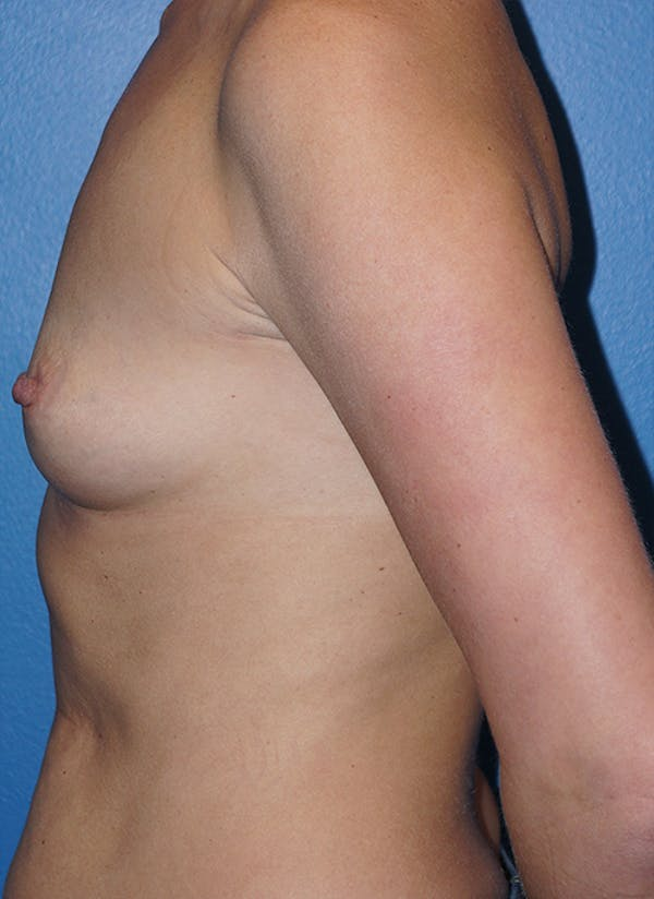 Breast Augmentation Gallery - Patient 5226536 - Image 5