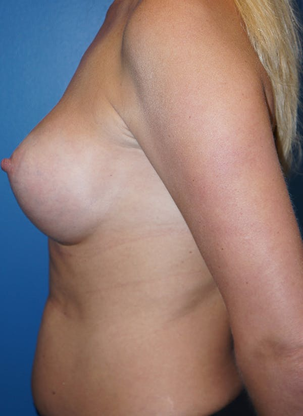 Breast Augmentation Gallery - Patient 5226536 - Image 6
